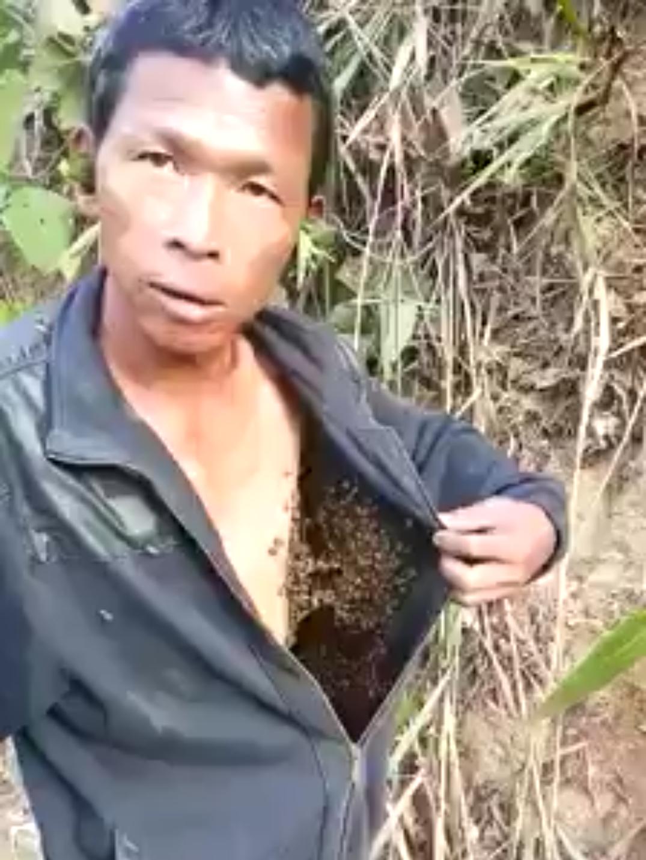 ratusan tawon membuat sarang di badan pria ini