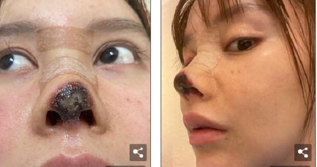 Gagal Operasi sampai Hidungnya Membusuk, Gao Liu Kini Habiskan Rp868 Juta untuk Wajah Cantiknya