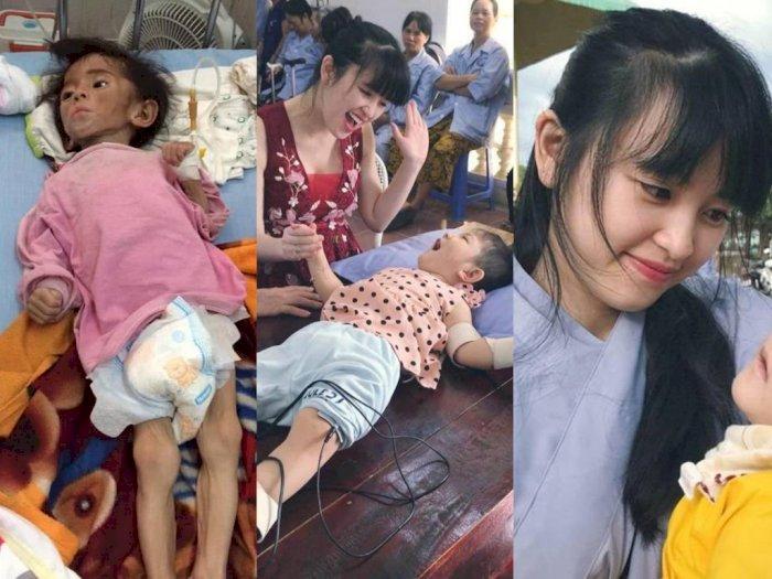 Gadis Muda Ini Adopsi Bayi Gizi Buruk, Merawatnya Menjadi Balita yang Bahagia